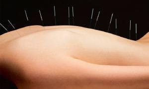 agopuntura-digitopressione